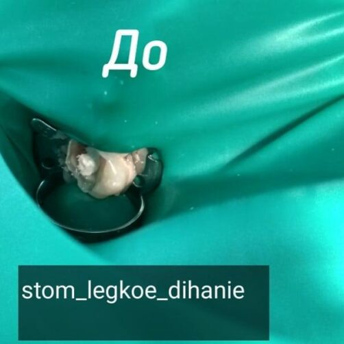 stom_legkoe_dihanie_31680516_878250069036655_8648305400870862848_n