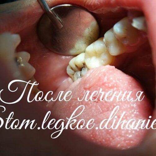 stom_legkoe_dihanie_33249940_462875910801615_1975181027647160320_n