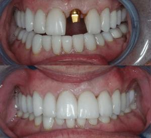 Наращивание зуба материалом светового отверждения